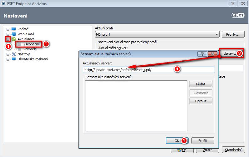 Změna aktualizačního serveru v ESET Endpoint